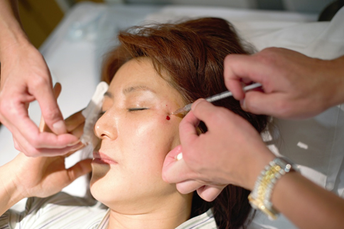 Stem cell therapy administered at Nishihara Clinic in Japan for skin regeneration purposes